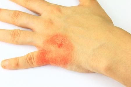rash: Manuum ti�a, enfermedad de la piel Foto de archivo