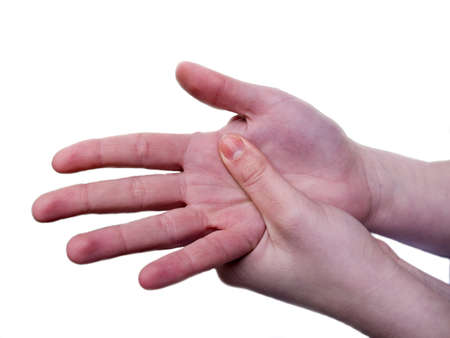 rheumatoid: womans hand in pain