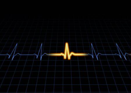 ECG: Illustration of a heart machine display