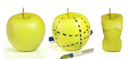 an apple shape as a cosmetic surgery