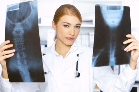 Doctor comparing two x-ray pictures in her surgery Stock Photo - 3963032