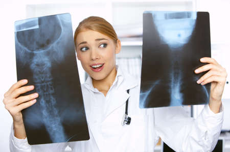Doctor comparing two x-ray pictures in her surgery Stock Photo - 4096956