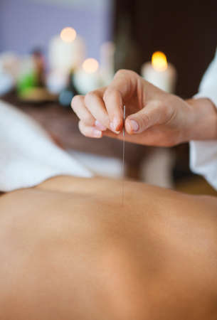 acupuncture: Close up of a hand placing acupuncture needle on back of a woman in salon