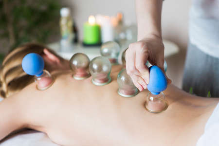 Young woman getting treatment at medical clinic. Fire cupping cups on back of female patient in Acupuncture therapy Stock Photo