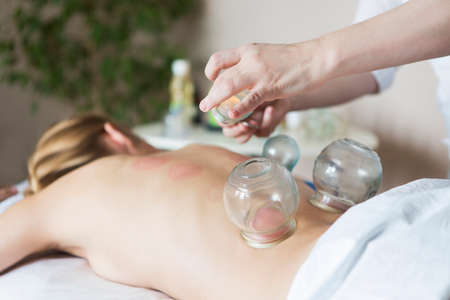 cupping glass cupping: Young woman getting treatment at medical clinic. Fire cupping cups on back of female patient in Acupuncture therapy Stock Photo