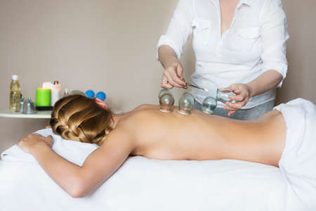 back ache: Young woman getting treatment at medical clinic. Fire cupping cups on back of female patient in Acupuncture therapy Stock Photo