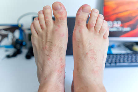 a lot of mosquito bites on mens legs. allergy from a bite on the skin