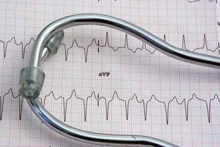 stethoscope sitting a a 12 lead EKG Stock Photo