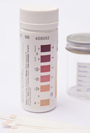 urinalysis: Analisi delle urine strisce vasca, alcune strisce di test e una provetta di urina in background