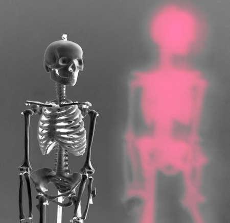 esqueleto humano de rayos x imagen de rayos x radiografía de huesos hueso símbolo de la medicina ortopedics ortopedia biología  Foto de archivo - 1877142