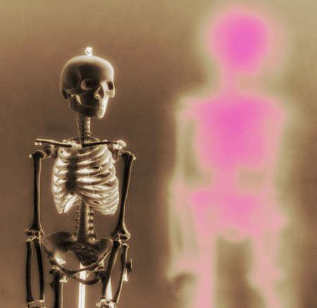 skeleton x ray: human skeleton x ray x ray picture radiograph bones bone symbol of medicine ortopedics orthopaedics biology Stock Photo
