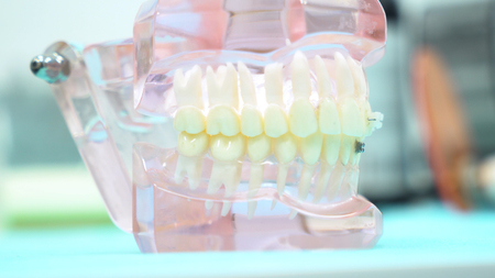 A model of the jaw on the table of the dental clinic, dental care and medicine concept. Media. Close up for the false jaw at the dentist office. Stock Photo