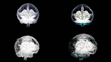 Four brains spinning with mri scanning on black background, health concept. Animation. Human brain, right and left hemispheres during medical procedure, seamless loop.