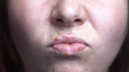 Close up of herpes disease on the lips of a young girl. Media. Female face details with the virus spots, concept of medicine and illnesses. Archivio Fotografico