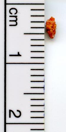 신장 결석 측정
