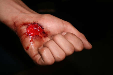 cut: A hand with a scrape  wound   Stock Photo