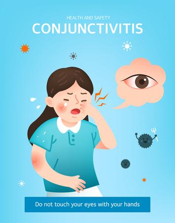 Wie man einer Bindehautentzündung vorbeugt