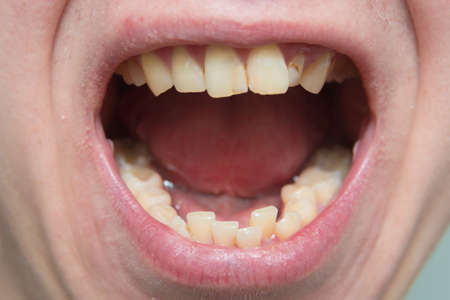 European male open mouth crooked yellow teeth dry lips