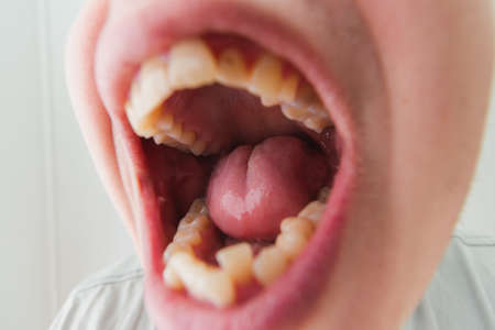 European male open mouth crooked yellow teeth dry lips Banco de Imagens