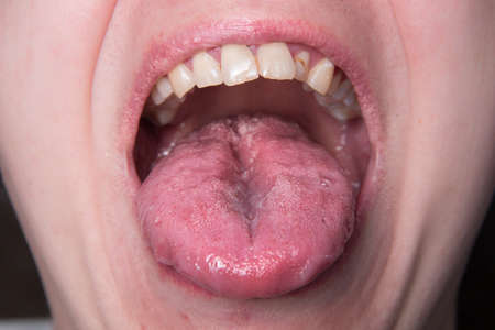 Male shows overgrowth candidiasis on his tongue Reklamní fotografie