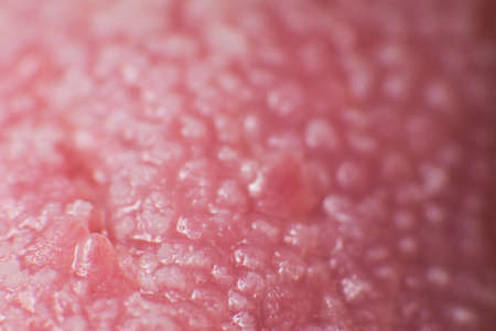 Super macro surface of tongue candidiasis overgrowth