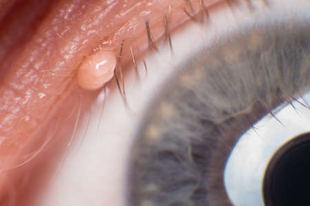 Skin Tag on the Eyelash Line, super macro Stock Photo
