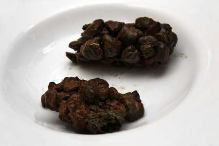 Human poop excrements in white plate brown black Stok Fotoğraf