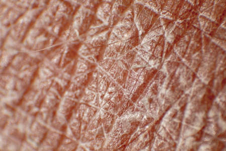 Large plaque parapsoriasis on caucasian man legs
