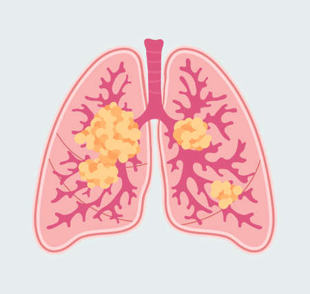 Patient-friendly scheme of Lung Cancer. Anatomical Diagram of tumor and metastasis in respiratory organs
