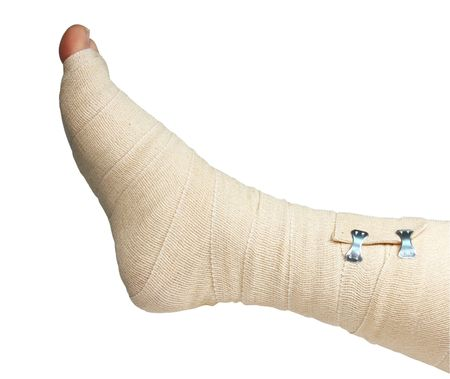 sprain: right foot and ankle wrapped in an ace bandage isolated  Stock Photo