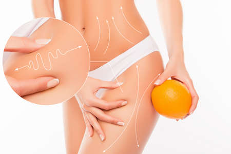 No to cellulite! Close up photo collage of woman  showing her skin body with arrows and  holding orange near hip Stock Photo
