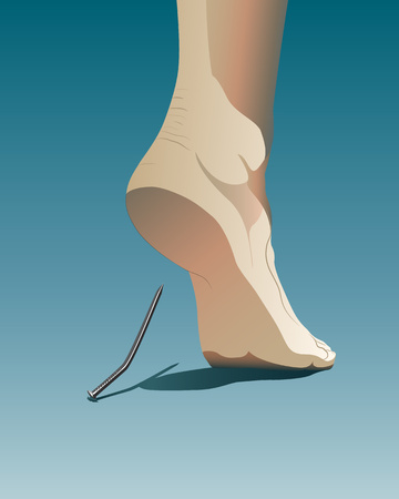 misfortune: Human heel injured by metal nail. Symbolizing vulnerability, weakness, weak point