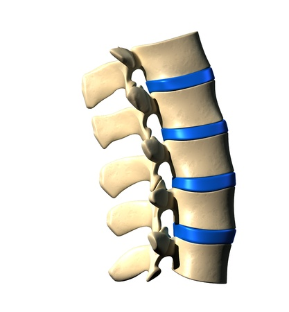 lateral view: Lumbar Spine - Lateral view   Side view