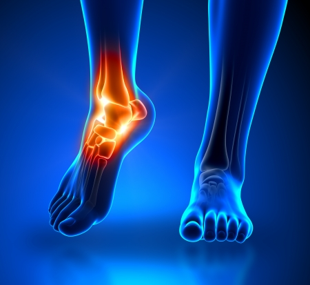 bones of the foot: Ankle pain - detail