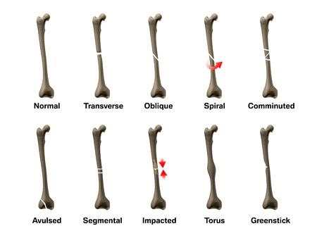 fractura: Todos los tipos de fracturas óseas Foto de archivo