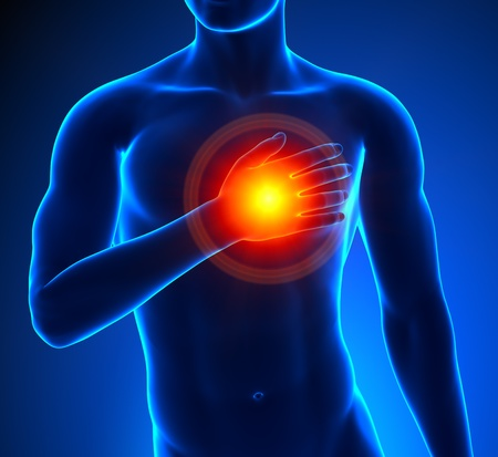 Heart-Attack Male Stock Photo - 19244752