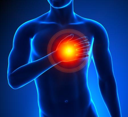 Heart-Attack Male Stock Photo - 19244752