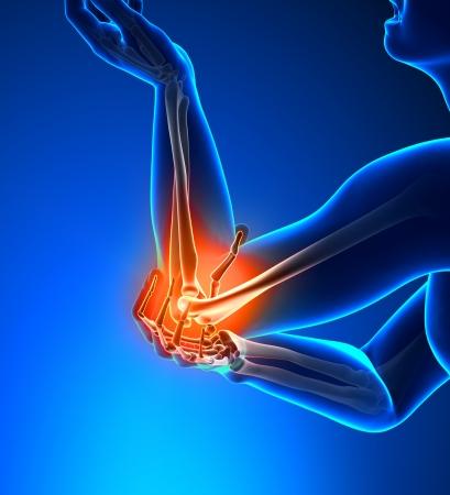 Schmerzen im Ellbogen Male - Seitenansicht Standard-Bild - 19244751