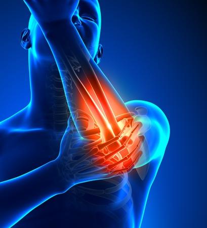 epaule douleur: Elbow Pain Homme - Vue de face