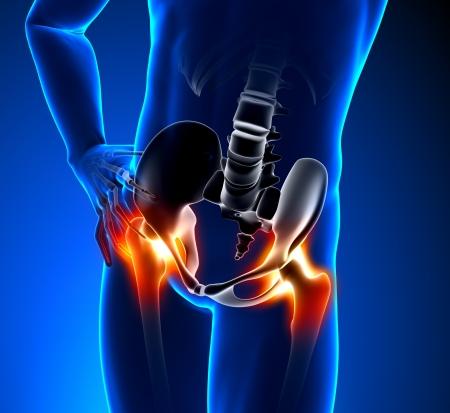 osteoporosis: El dolor de cadera Hombre