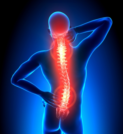 arthritis pain: Male Hurt Backbone - Vertebrae Pain Stock Photo