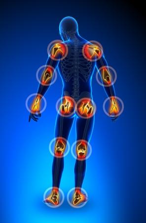 epaule douleur: Joints douleur - en pleine figure