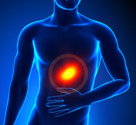 chest disease: Stomach pain Stock Photo