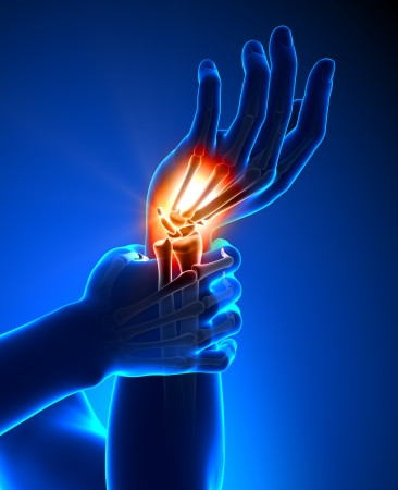 human palm: Wrist pain - detail