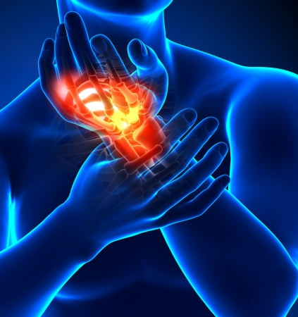 dolor de pecho: El dolor de muñecas - detalles Foto de archivo