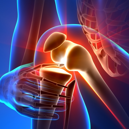 Pain Knee Anatomy Rays Stock Photo - 20869494