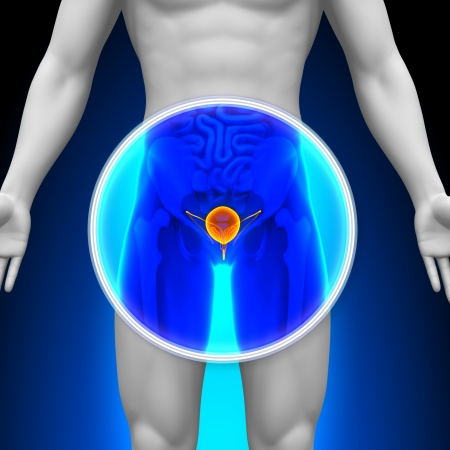 Medical X-Ray Scan Bladder photo