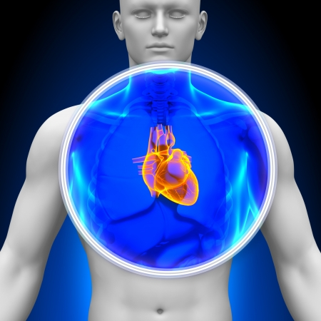 heart attacks: Medical X-ray Scan Heart Stock Photo