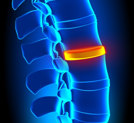 lateral: Disc Degeneration - Spine problem Stock Photo