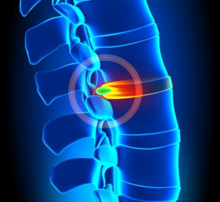 columna vertebral: Hernia de disco Degeneraci�n - problema de columna